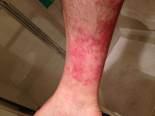 Hiker's rash: red rash between knee and ankle after hiking