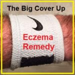 Eczema, Psoriasis, Rash, Scally, Cracked, Bleeding, Skin