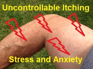 How to stop itching from stress and axiety.